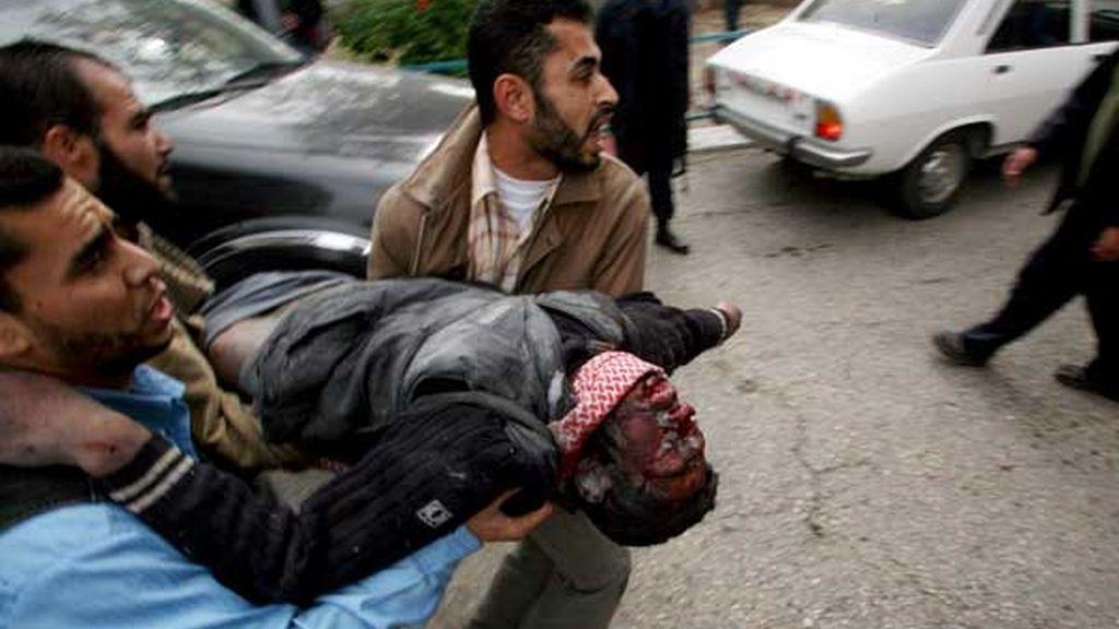 ATAQUE ISRAELÍ SOBRE GAZA