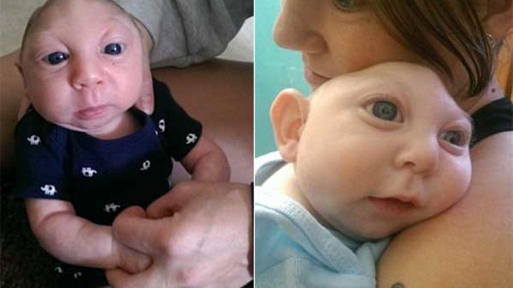 Jaxon Buell, el niño que sobrevive sin parte del cerebro y del cráneo
