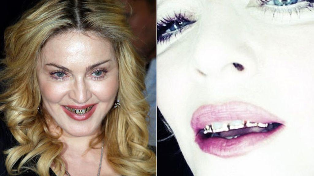 Desde Madonna hasta Justin Bieber, todos lo llevan