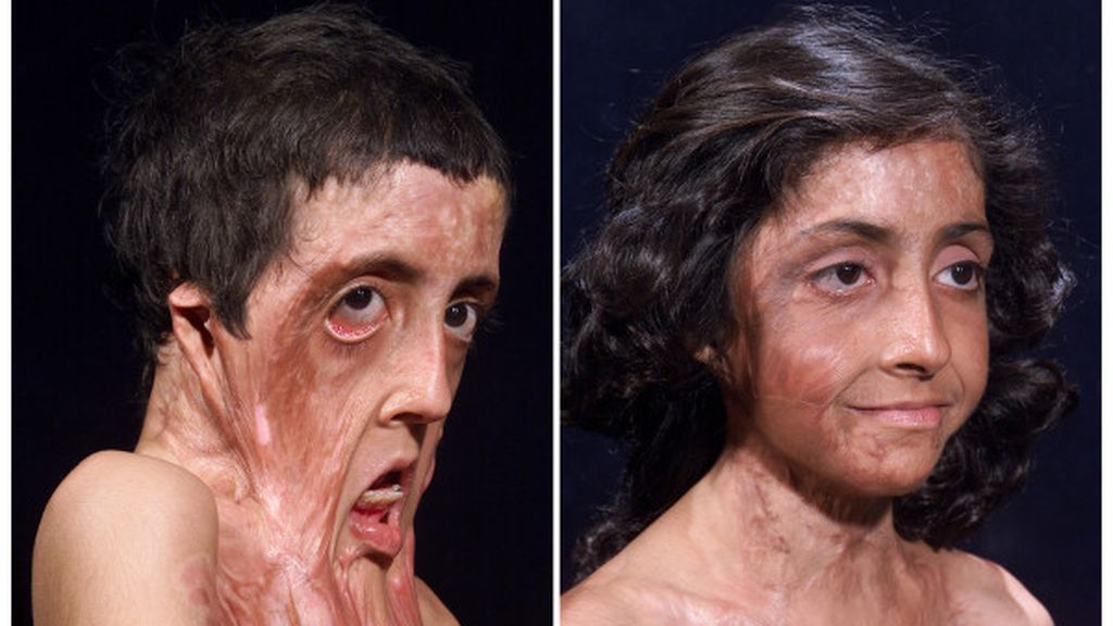 El antes y el después de Zubaida