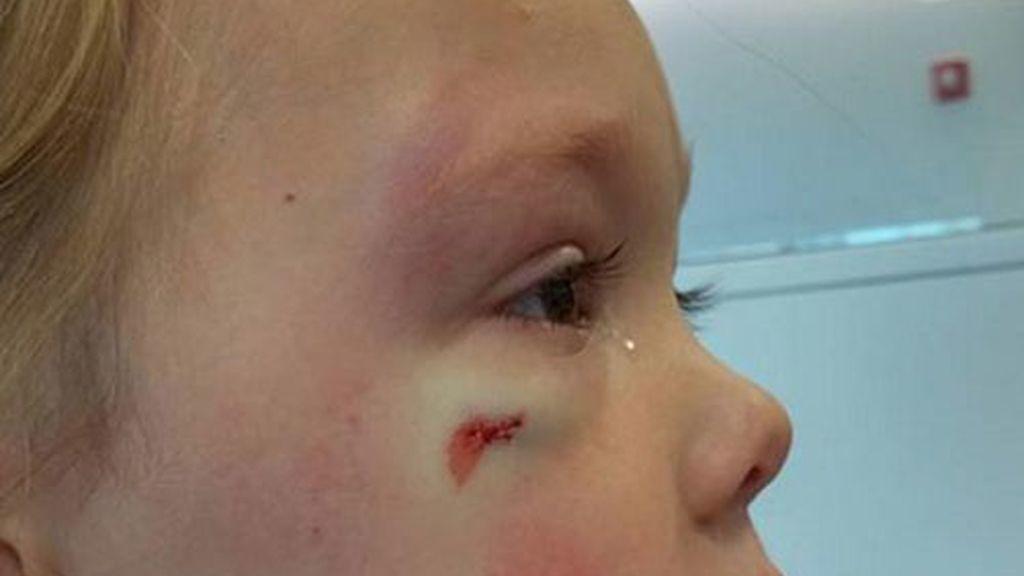 Una madre indignada por la respuesta de una enfermera a su hija recién golpeada