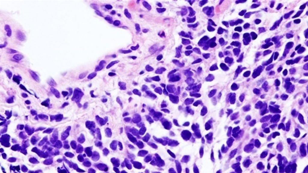 Investigadores crean una nariz artificial para detectar, a través del aliento, el cáncer de pulmón