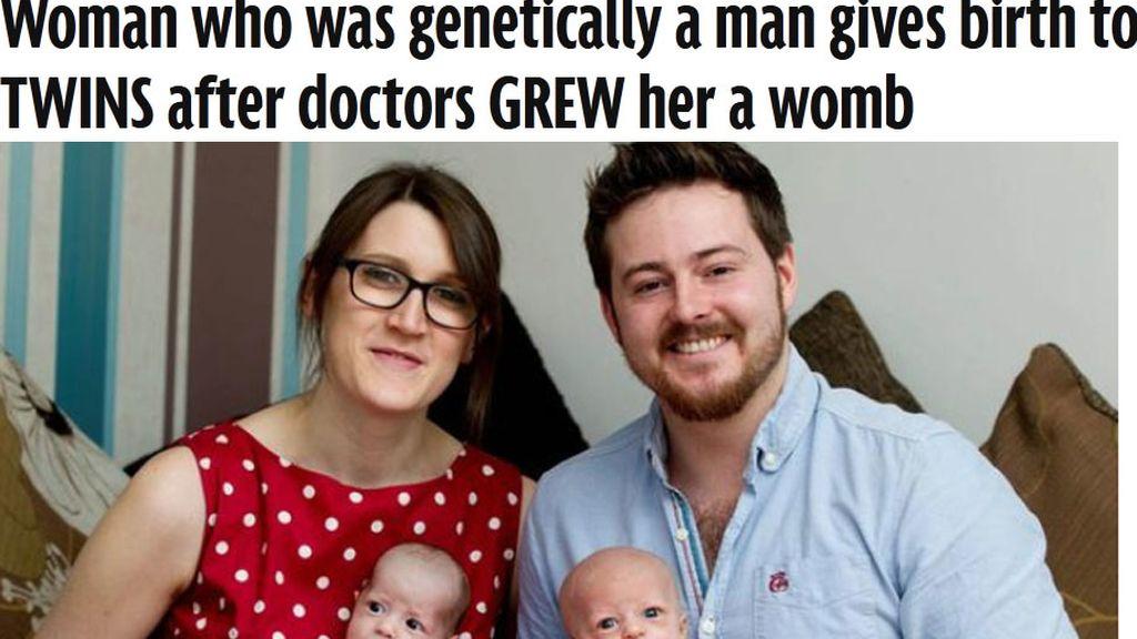 Con rasgos de mujer y genes de hombre, da a luz a gemelas