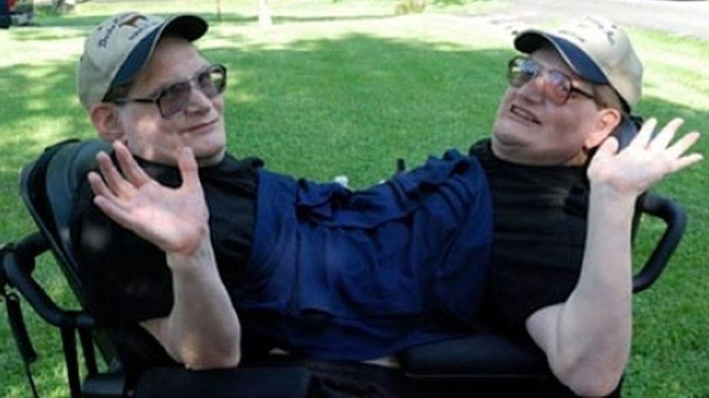 Ronnie y Donnie Galyon, siamenes de 62 años