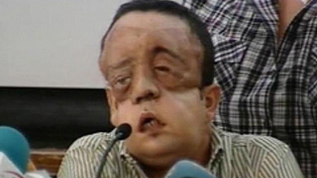 Comparecencia del segundo de cara transplantado en España