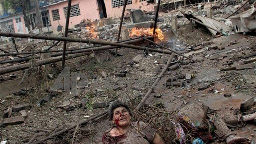 Una mujer herida tras el asedio