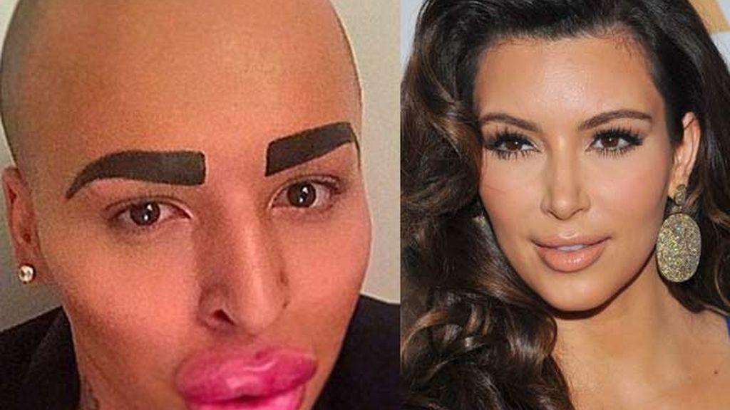 Se gasta 121.000 euros para parecerse a Kim Kardashian