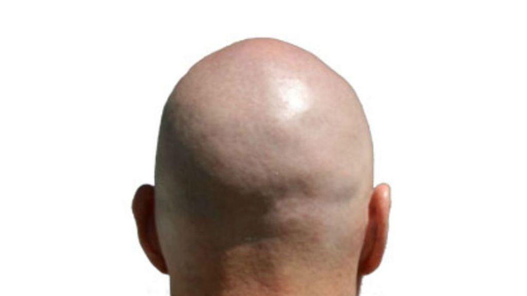 calvo, calvicie, alopecia, caída de pelo