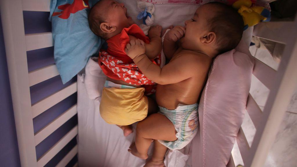 Gemelos con Zika, uno con microcefalia y otro sano
