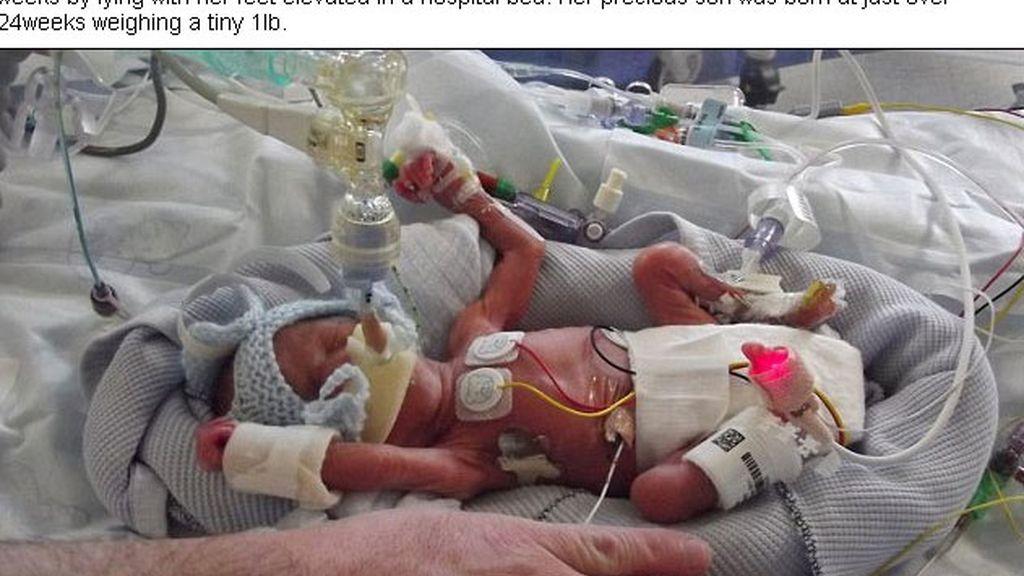 Sobrevive tras nacer con poco más de 450 gramos