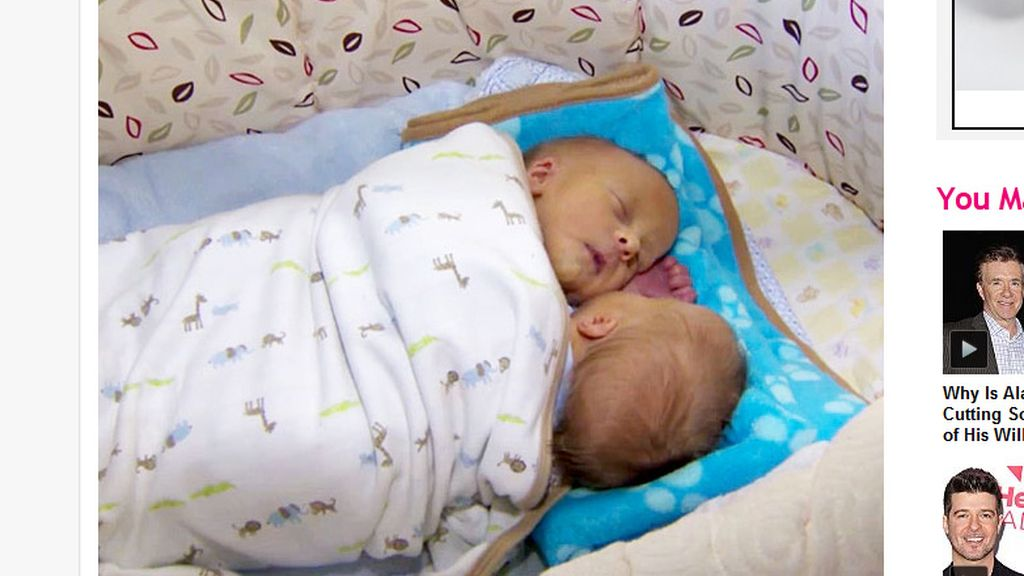 Bebés siameses