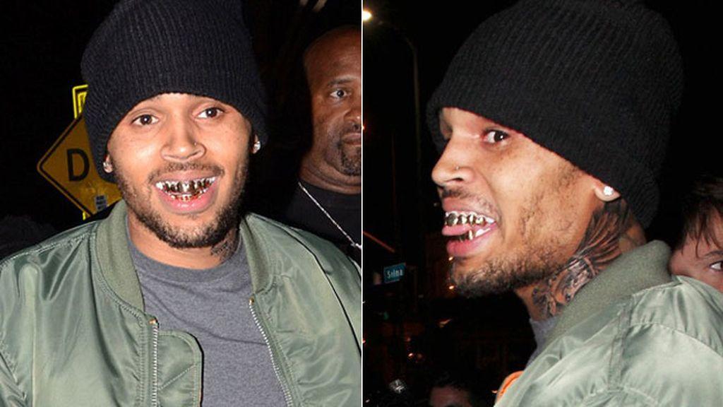 La sonrisa de Chris Brown, la más brillante de Hollywood