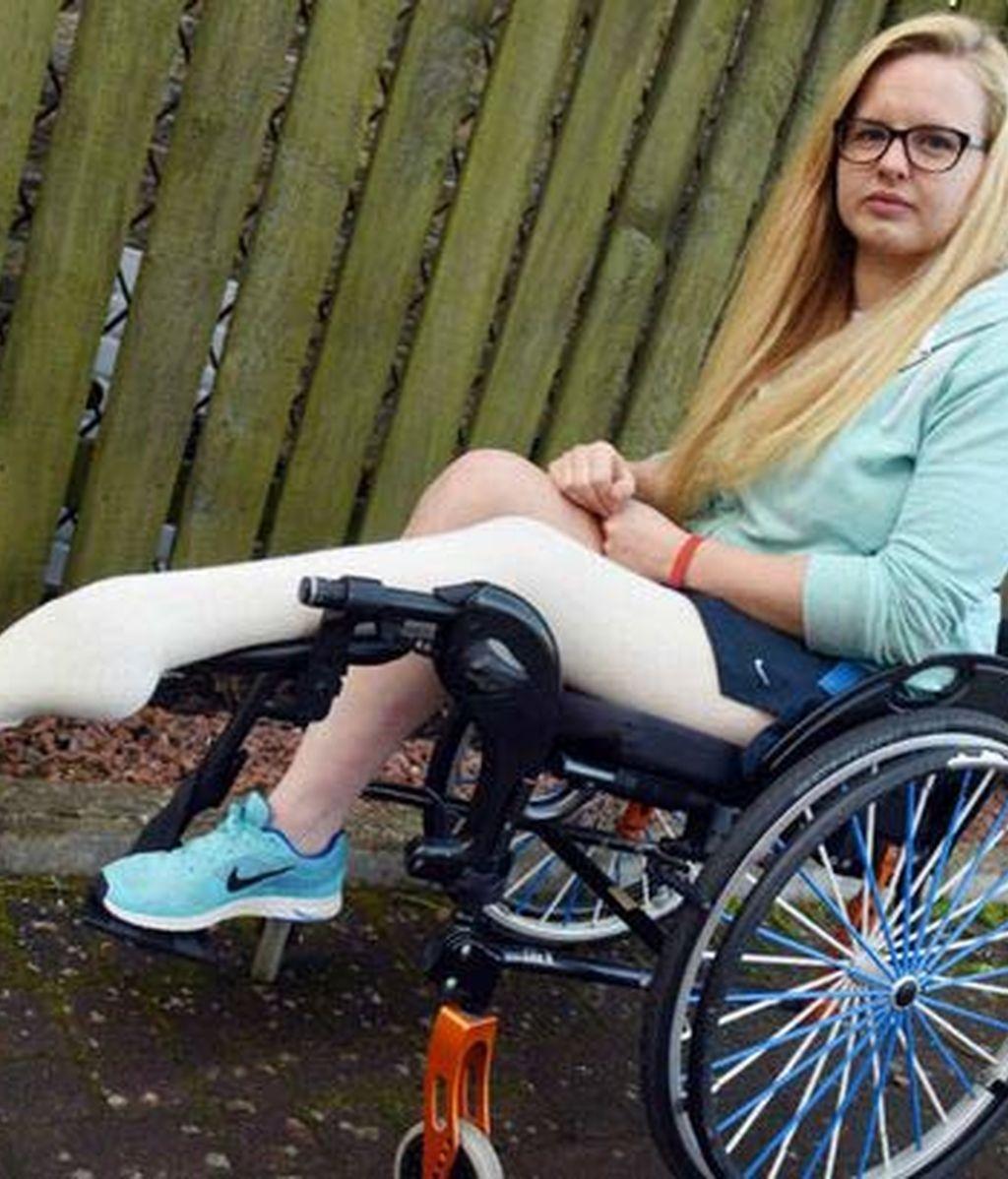 Hope Gordon sufre tremendos dolores en su pierna