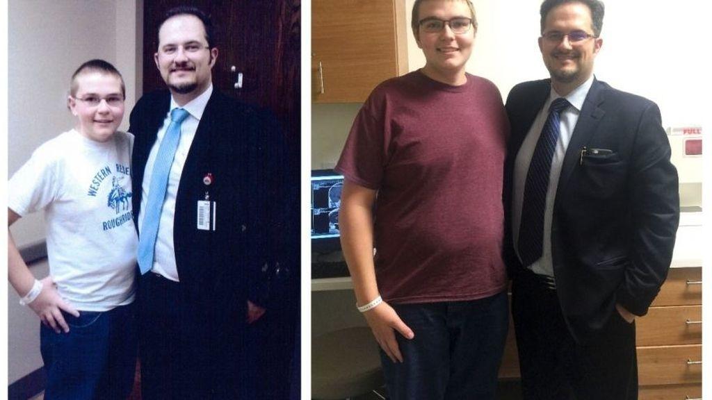 El antes y el después del chico que no crecía