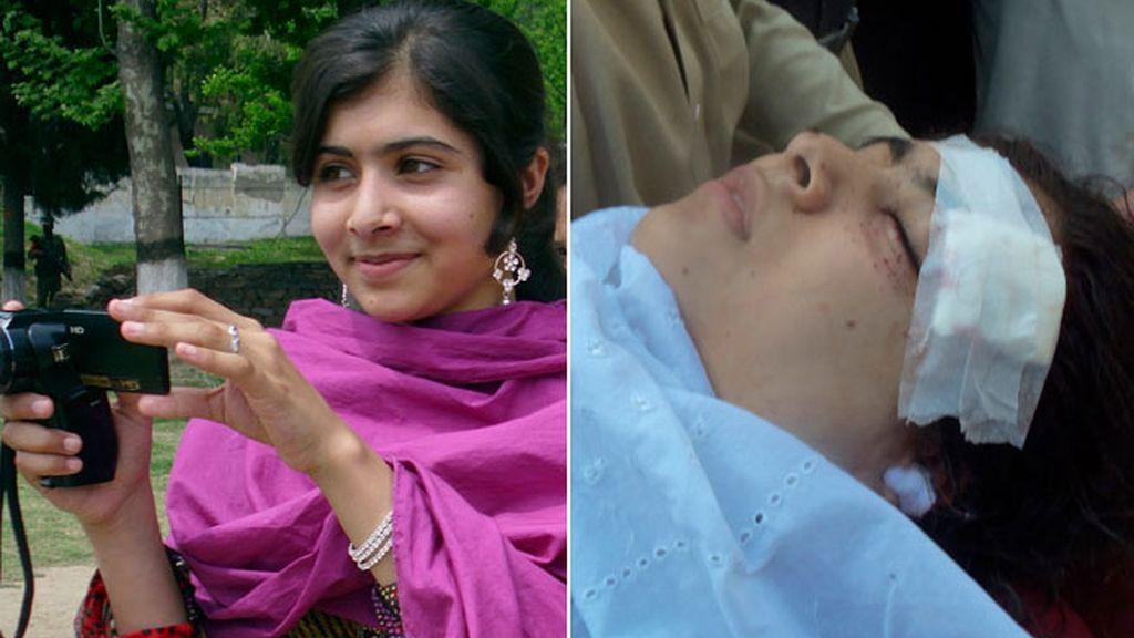Malala ha sido tiroteada por defender los derechos de las niñas paquistaníes