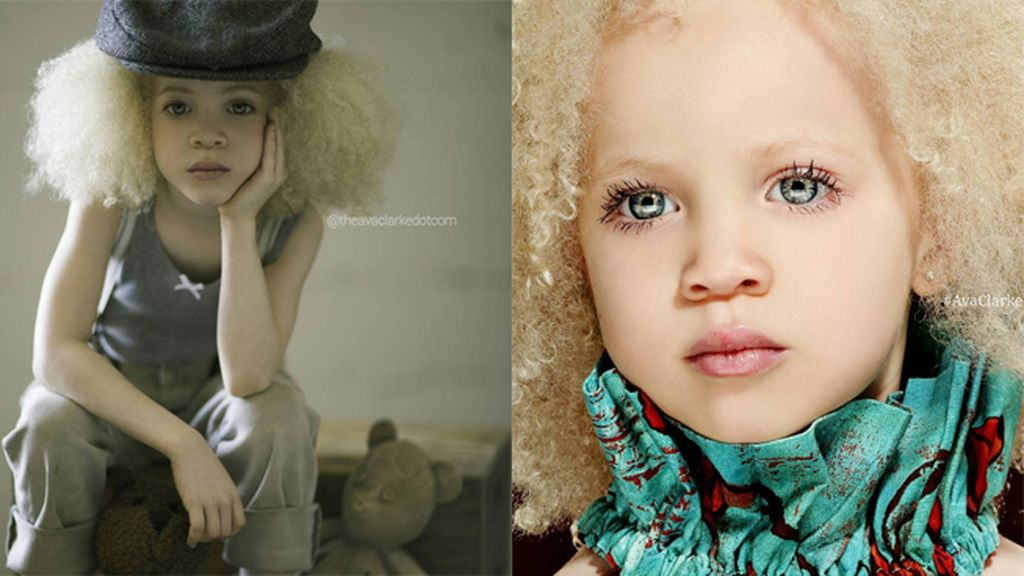 Ava es albina, sufre un trastorno genético que afecta los niveles de producción y distribución de melanina