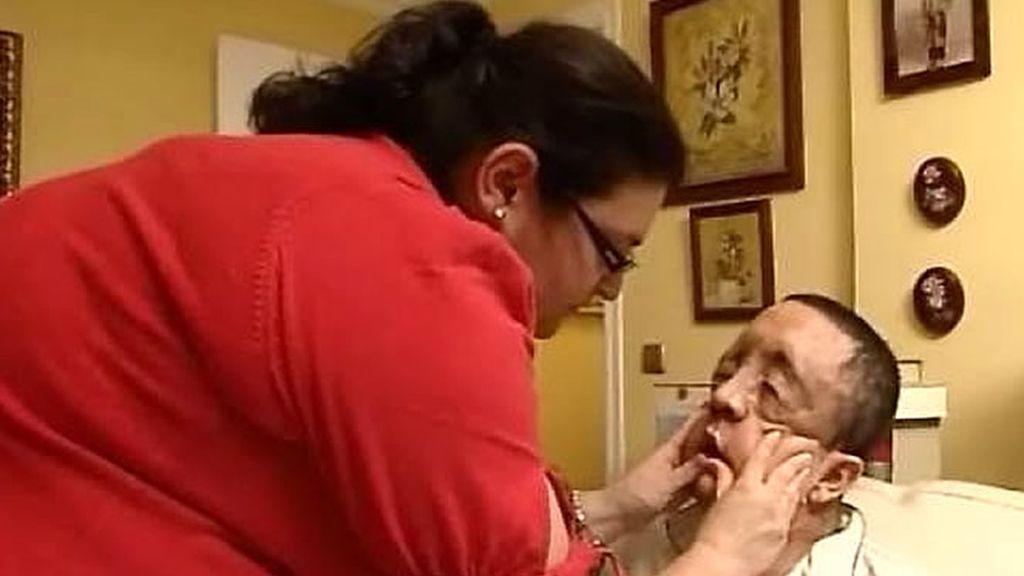 La rehabilitación del paciente incluye masajes faciales diarios y durante 12 meses