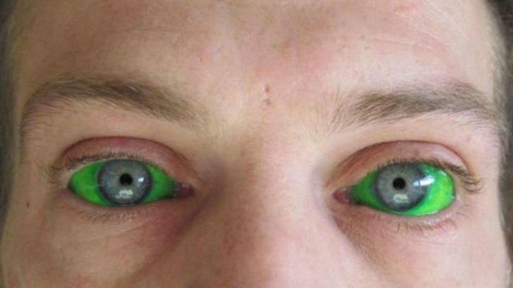Esta arriesgada moda recibe el nombre de 'Eyeball Tattoo'