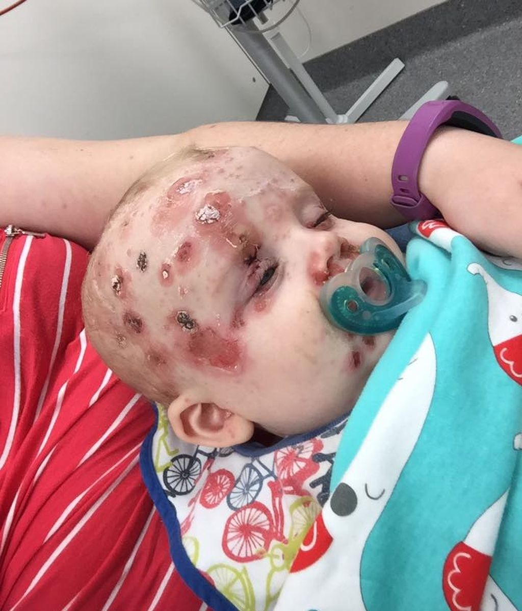Bebé varicela