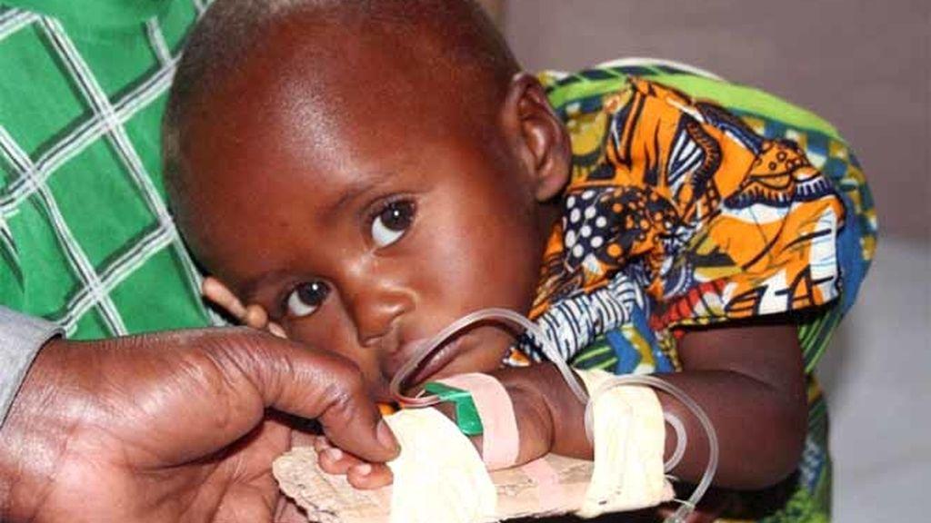 Un niño congolés enfermo de malaria