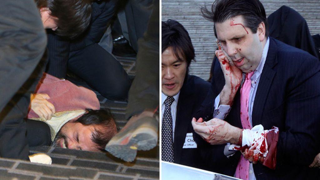 El embajador de EEUU en Corea del Sur atacado por un activista