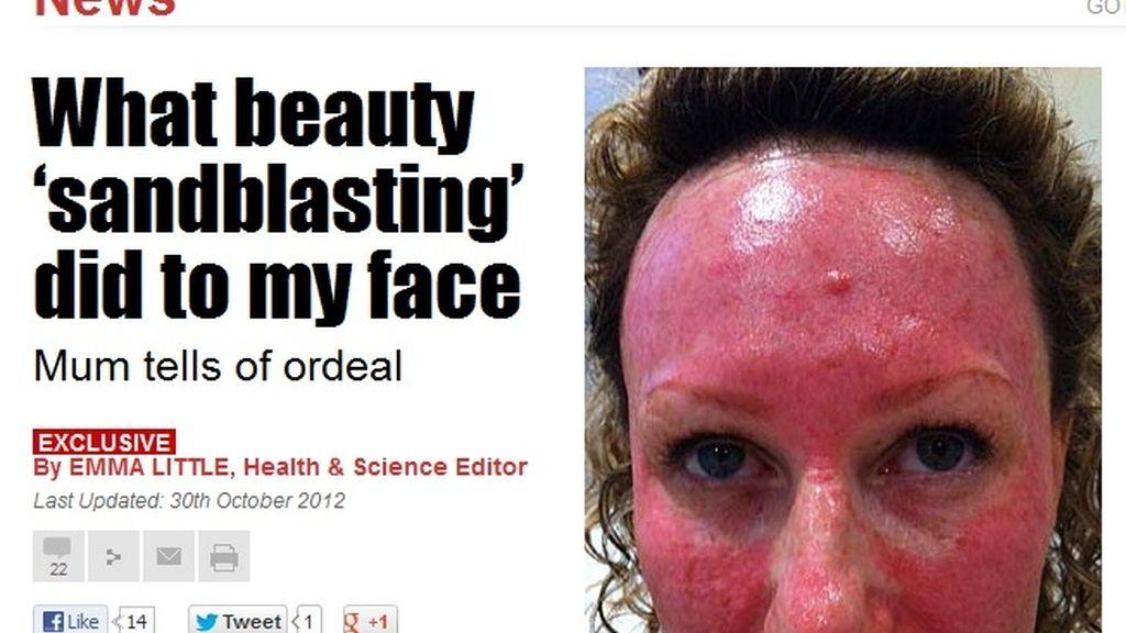 Así quedó su cara tras un tratamiento de belleza