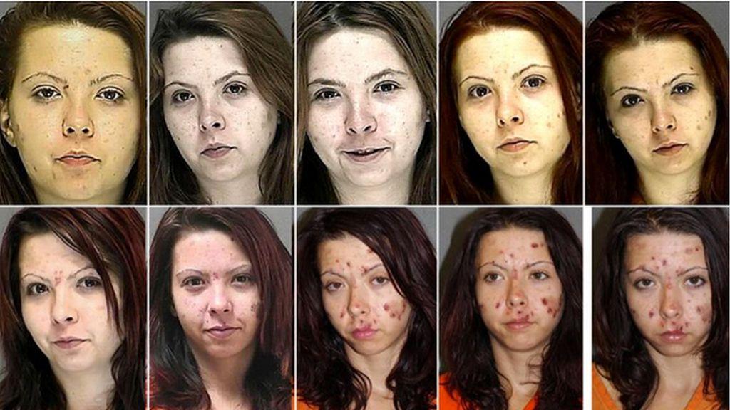 efectos de las drogas, metanfetaminas, daños de las drogas, consumo de drogas, adicción