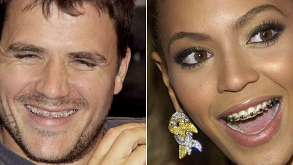 Orgullo bracket los famosos y sus correctores dentales for W de porter ortodoncia