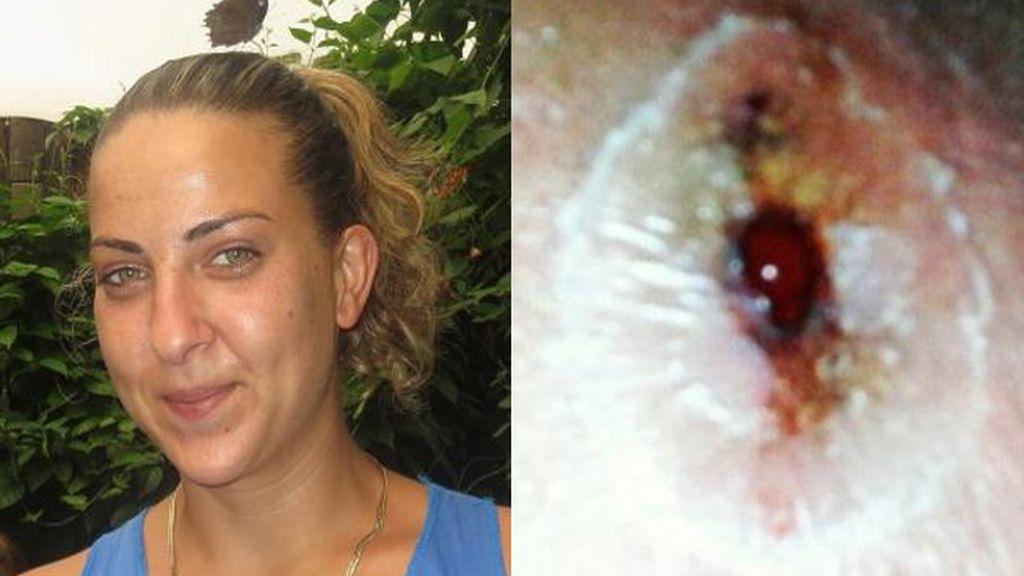 Una madre acaba hospitalizada por la picadura de una araña tras estar en el zoo de Londres