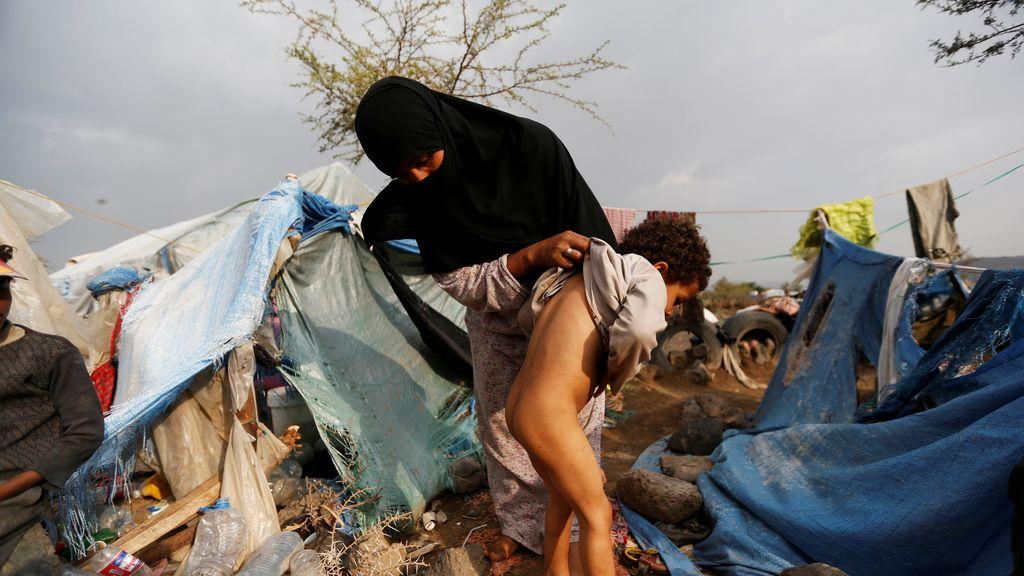 Sufrimiento en Yemen