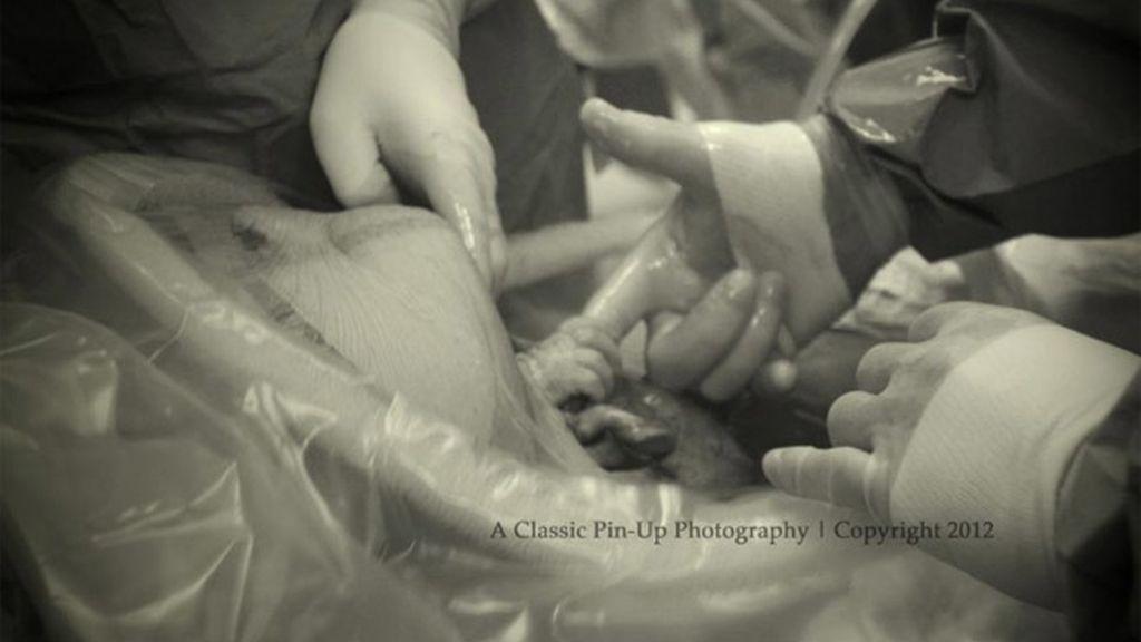 Un bebé agarra el dedo del cirujano que le trae al mundo durante una cesárea
