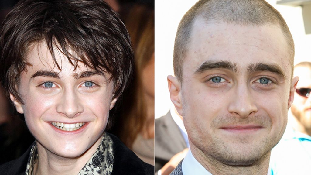 Daniel Radcliffe y lo que queda de Harry Potter