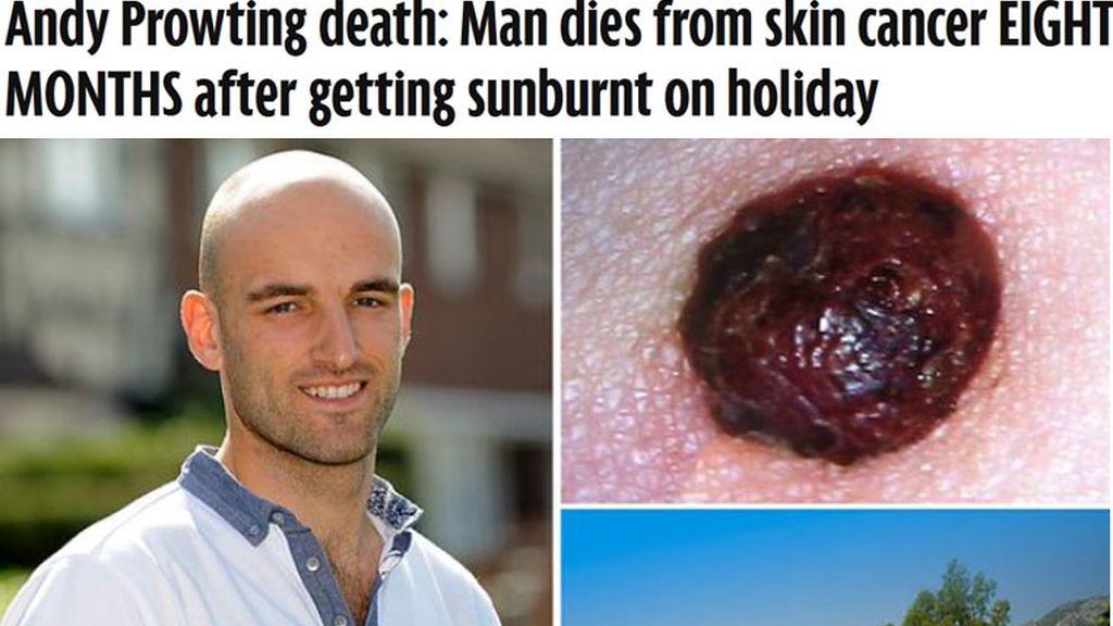 Fallece por cáncer de piel ocho meses después de quemarse con el Sol
