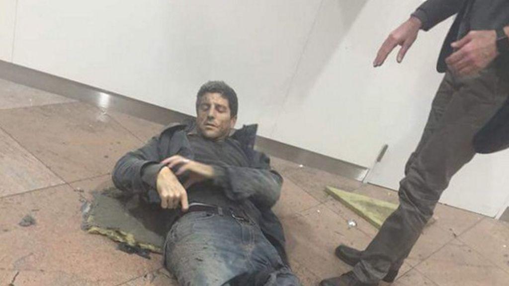 Un herido en las explosiones de Bruselas
