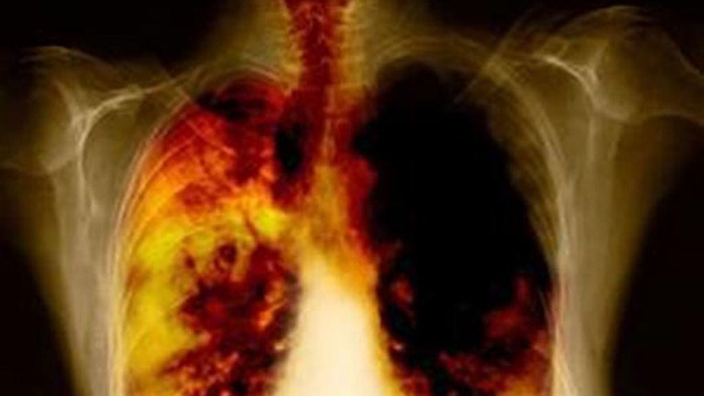 Imágen detallada de un cáncer de pulmón. Foto de archivo