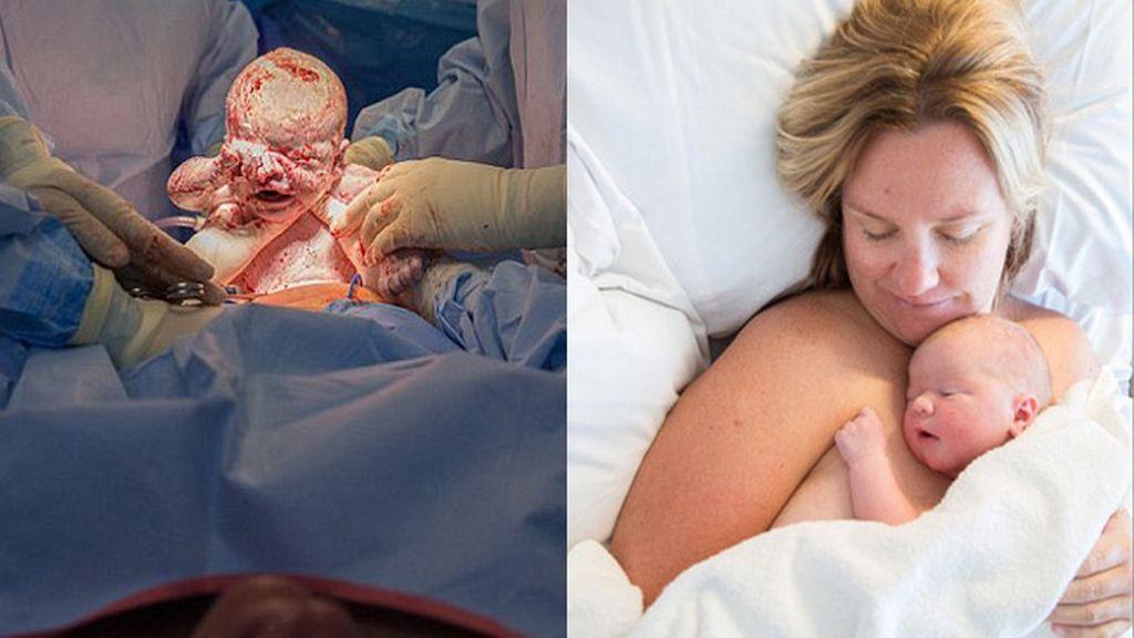 Una madre asiste su propio parto por cesárea
