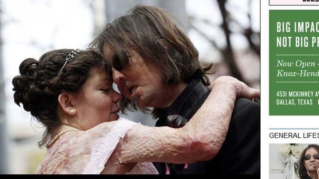 Dallas Wiens, primer traspaltado de rostro se casa con Jamie Nash