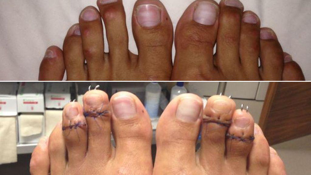 La nueva y peligrosa moda estética: acortarse los dedos de los pies