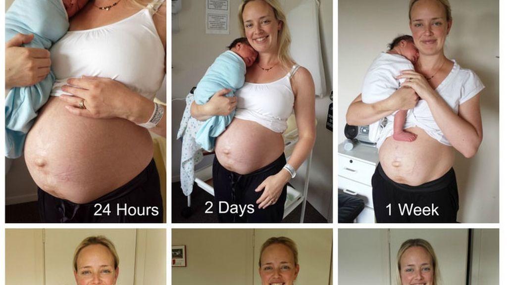 1-cómo queda realmente el cuerpo de una mujer después de dar a luz