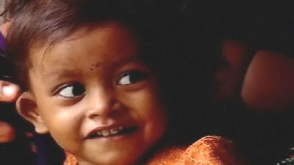 Lakshmi tiene un problema: nació con ocho extremidades