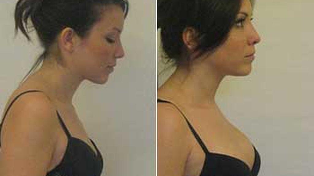 Una de las pacientes de los doctores Viel posa antes y después de su aumento de pecho. Foto: Daily Mail