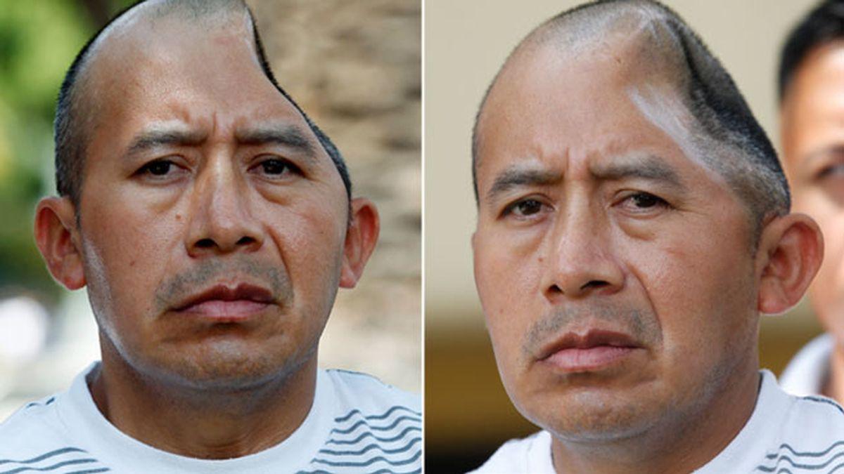 Antonio López Chaj ha perdido parte de su cabeza por una brutal paliza