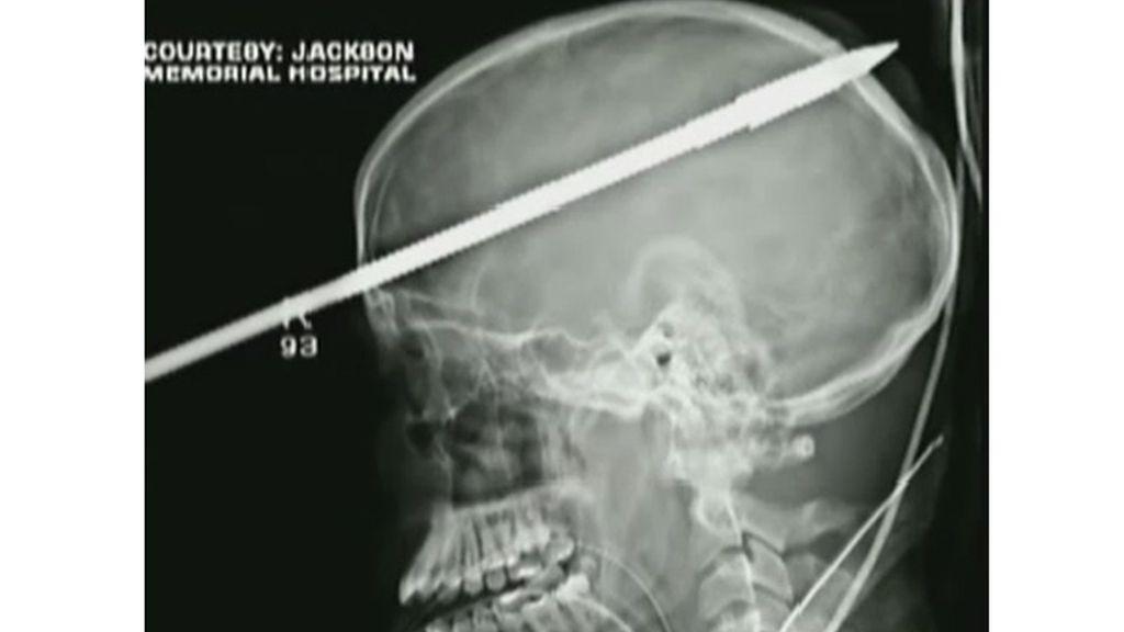 El joven estadunidense preparaba el arpón para pescar el pasado 7 de junio, cuando se le disparó accidentalmente y le atravesó la cabeza.