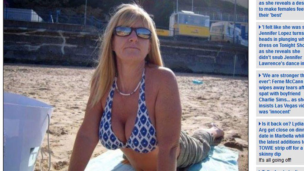 implantes PIP,implantes de pecho,explotan los implantes,Kim Brockhurst