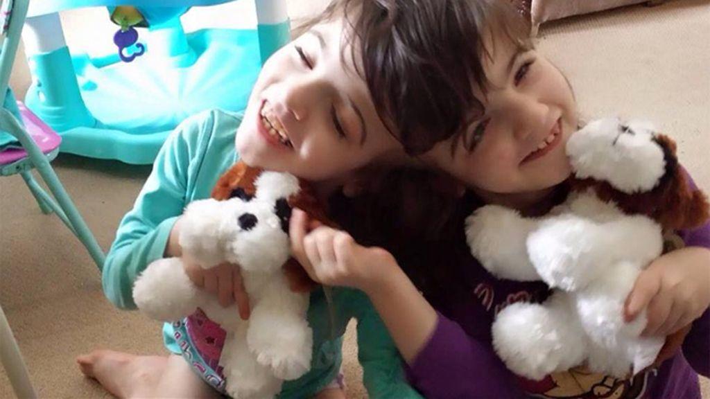 Dos gemelas siamesas de 7 años pueden ver la una a través de los ojos de la otra