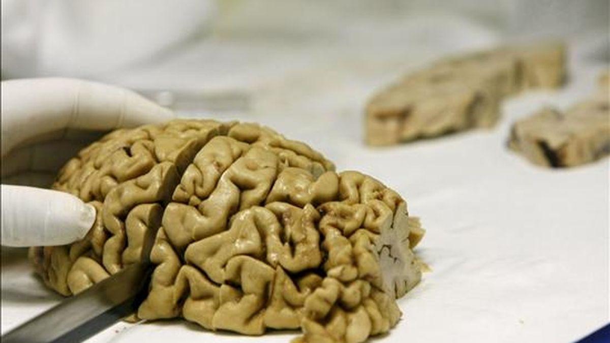 Imagen de un cerebro humano. EFE/Archivo