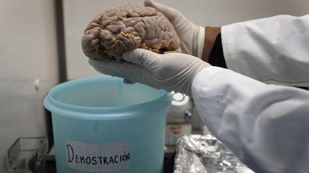 Un cerebro con Alzheimer, en Ciudad de México