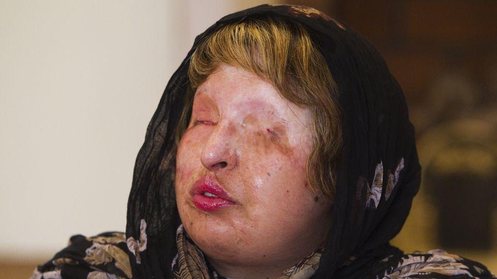 Ameneh Bahrami, fue agredida por no querer casarse con un hombre. Foto: Reuters