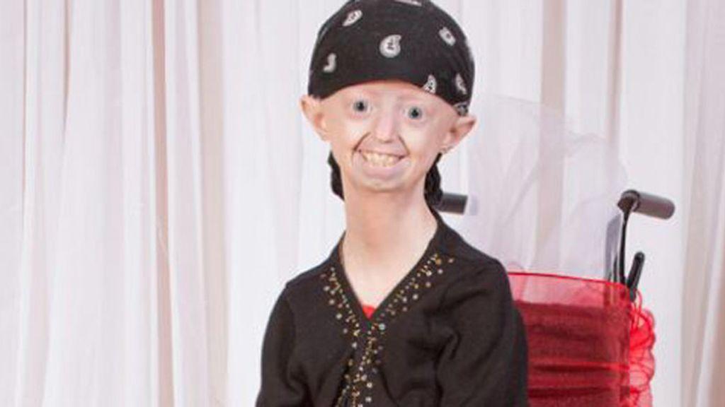 Muere Hayley Okines, la adolescente que envejeció antes de tiempo