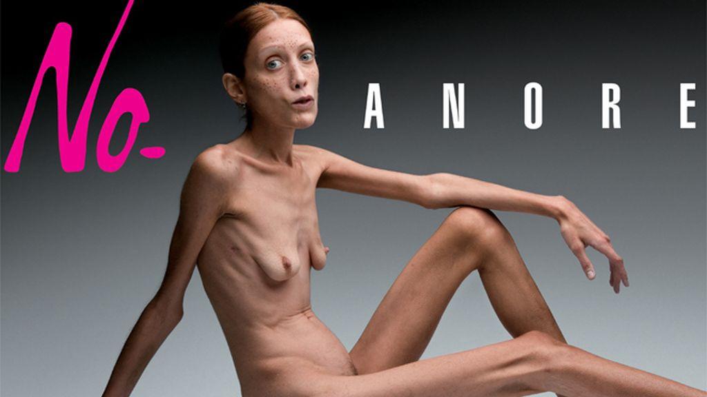 Muere Isabelle Caro, la modelo anoréxica de la campaña de Toscani